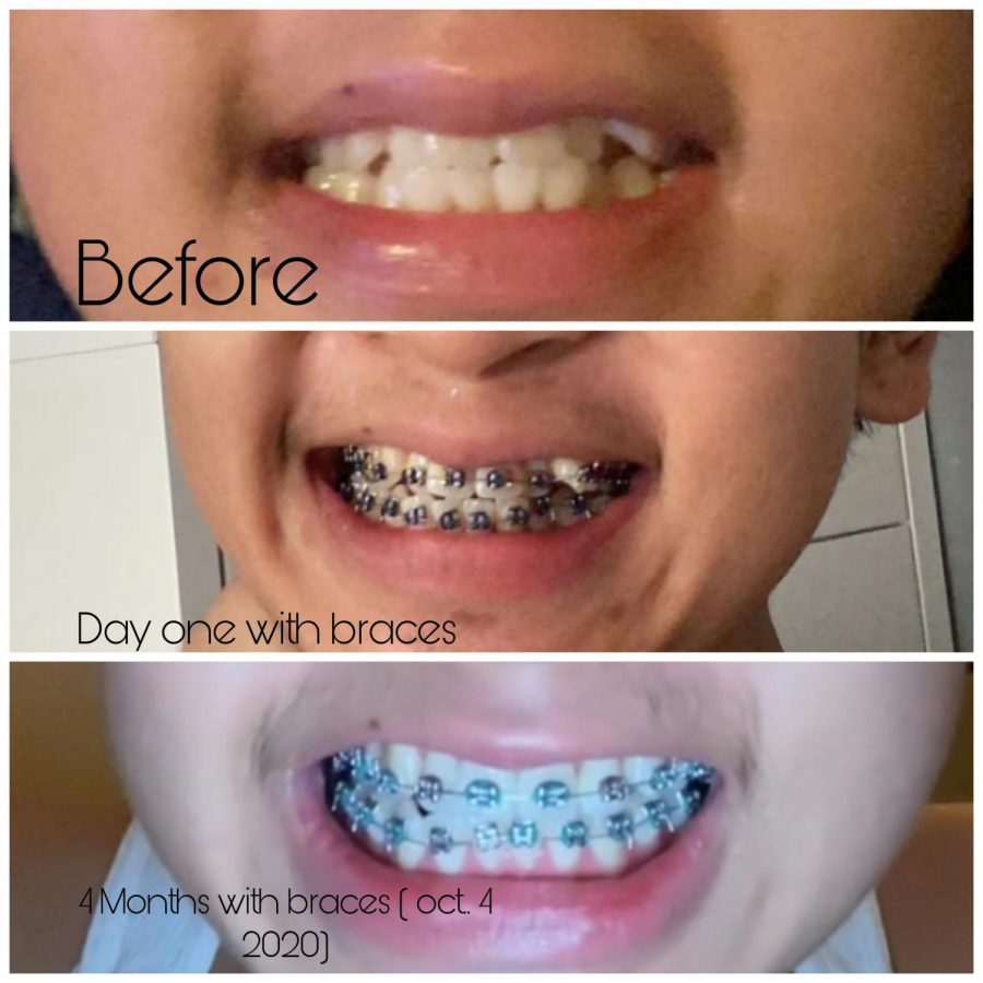 My+Braces+Experience